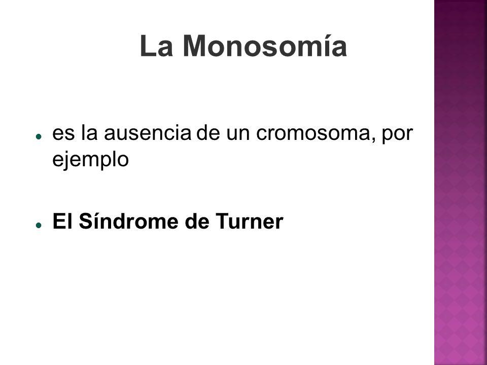 La Monosomía es la ausencia de un cromosoma, por ejemplo