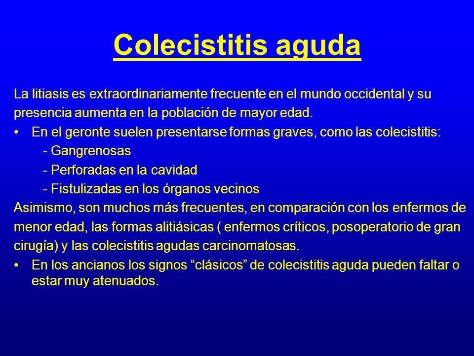 Colecistitis aguda La litiasis es extraordinariamente frecuente en el mundo occidental y su. presencia aumenta en la población de mayor edad.