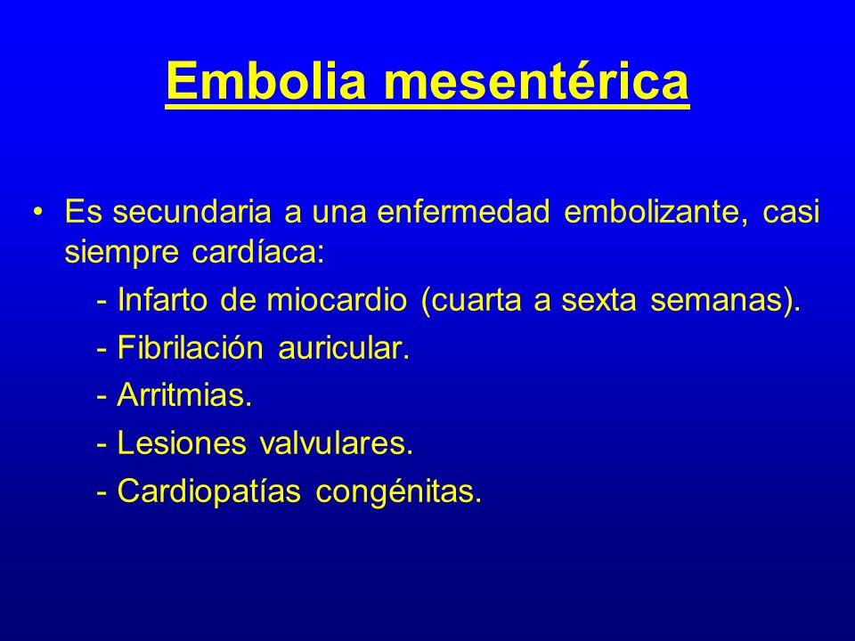 Embolia mesentérica Es secundaria a una enfermedad embolizante, casi siempre cardíaca: - Infarto de miocardio (cuarta a sexta semanas).