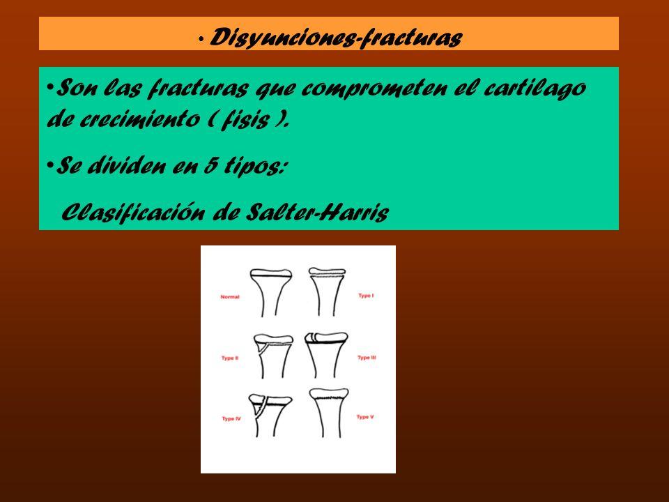 Disyunciones-fracturas