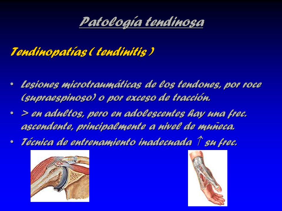 Patología tendinosa Tendinopatías ( tendinitis )