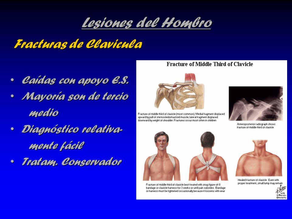 Lesiones del Hombro Fracturas de Clavicula Caídas con apoyo E.S.