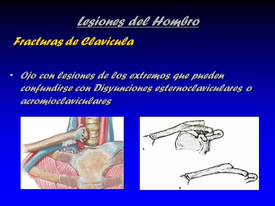 Lesiones del Hombro Fracturas de Clavicula