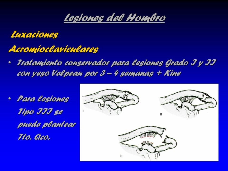 Lesiones del Hombro Luxaciones Acromioclaviculares