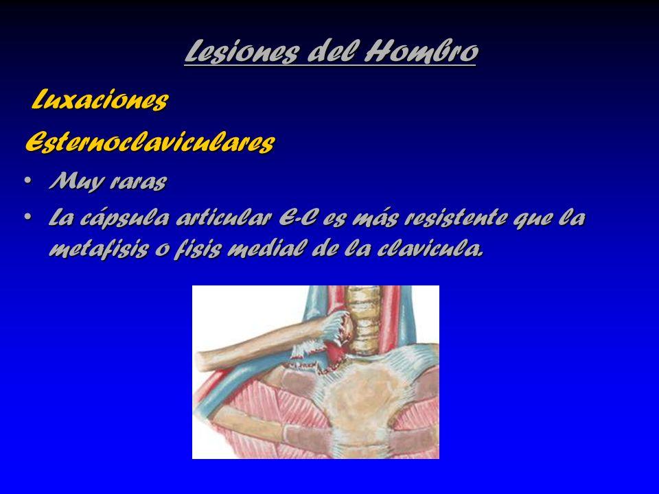 Lesiones del Hombro Luxaciones Esternoclaviculares Muy raras