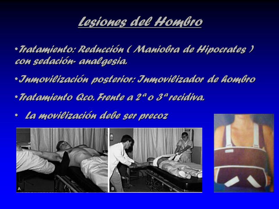 Lesiones del Hombro Tratamiento: Reducción ( Maniobra de Hipocrates ) con sedación- analgesia. Inmovilización posterior: Inmovilizador de hombro.