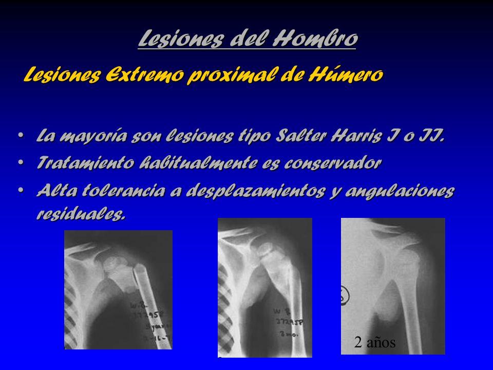 Lesiones del Hombro Lesiones Extremo proximal de Húmero