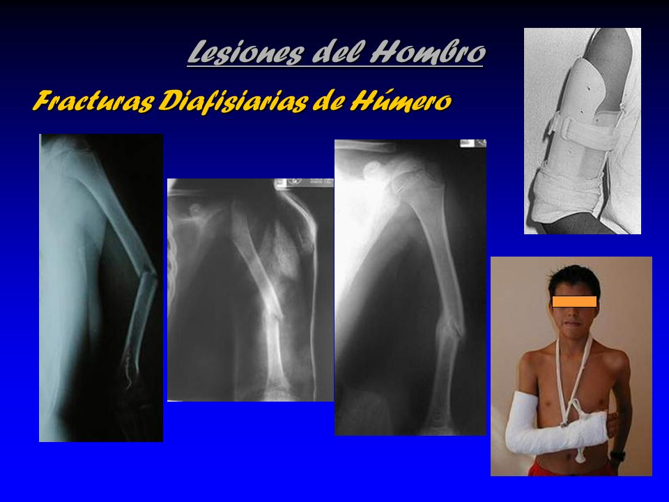 Lesiones del Hombro Fracturas Diafisiarias de Húmero