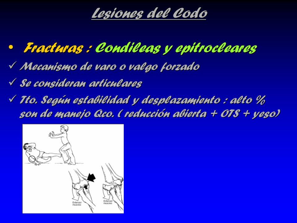 Fracturas : Condileas y epitrocleares