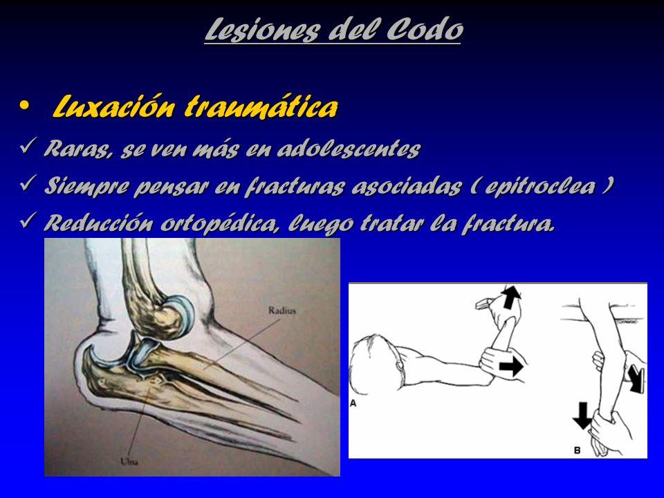 Luxación traumática Lesiones del Codo