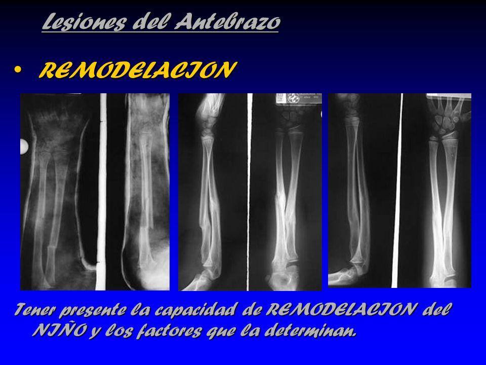 Lesiones del Antebrazo