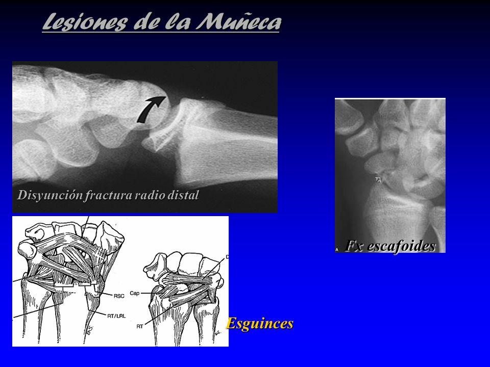 Lesiones de la Muñeca Fx escafoides Esguinces