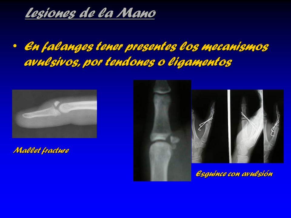 Lesiones de la Mano En falanges tener presentes los mecanismos avulsivos, por tendones o ligamentos.