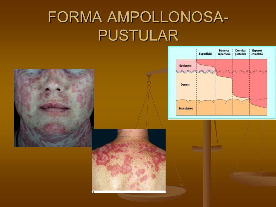 FORMA AMPOLLONOSA-PUSTULAR