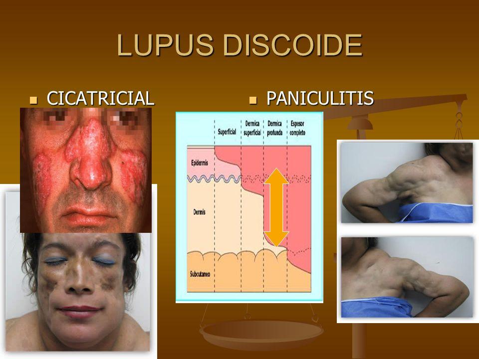 LUPUS DISCOIDE CICATRICIAL PANICULITIS