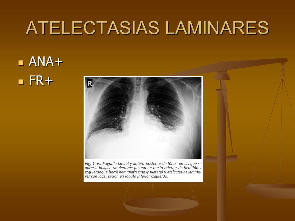 ATELECTASIAS LAMINARES