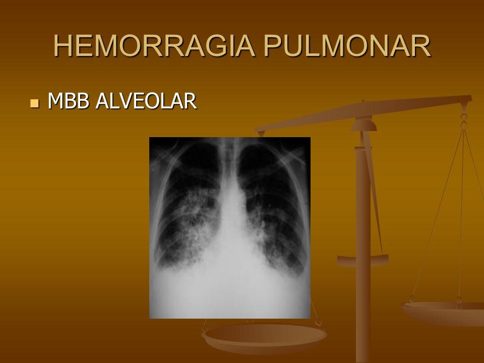 HEMORRAGIA PULMONAR MBB ALVEOLAR