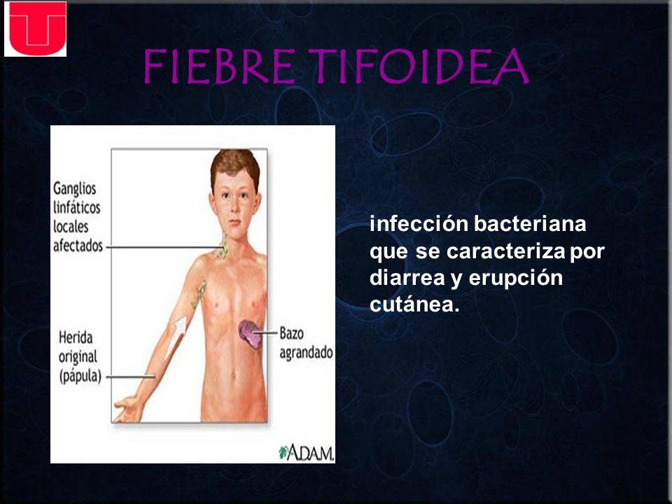 FIEBRE TIFOIDEA infección bacteriana que se caracteriza por diarrea y erupción cutánea.