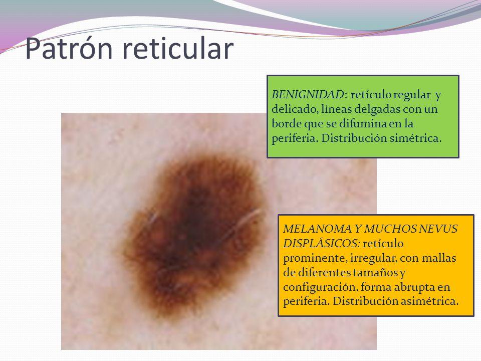 Patrón reticular BENIGNIDAD: retículo regular y delicado, líneas delgadas con un borde que se difumina en la periferia. Distribución simétrica.