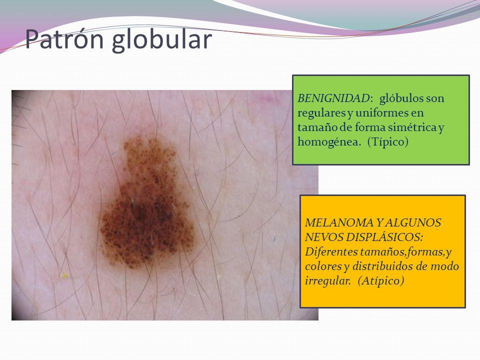 Patrón globular BENIGNIDAD: glóbulos son regulares y uniformes en tamaño de forma simétrica y homogénea. (Típico)