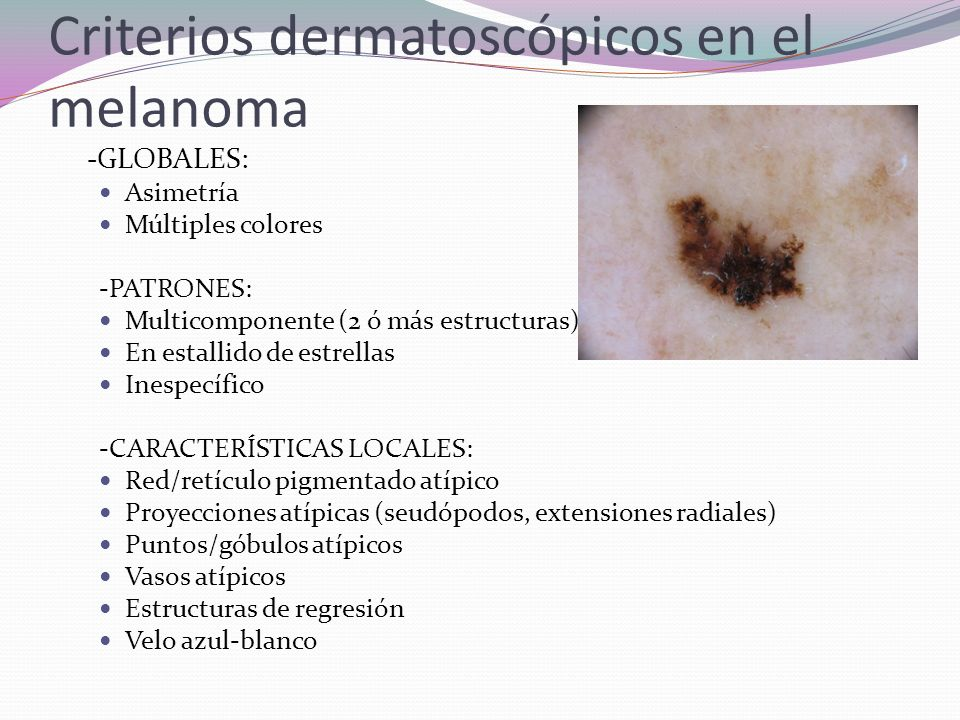 Criterios dermatoscópicos en el melanoma