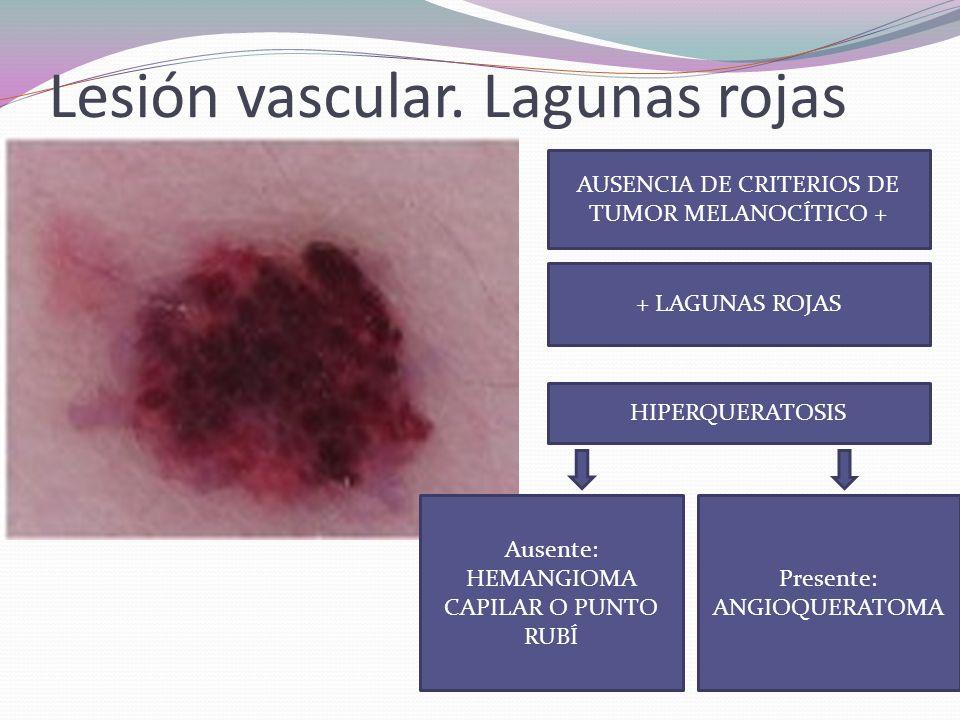 Lesión vascular. Lagunas rojas
