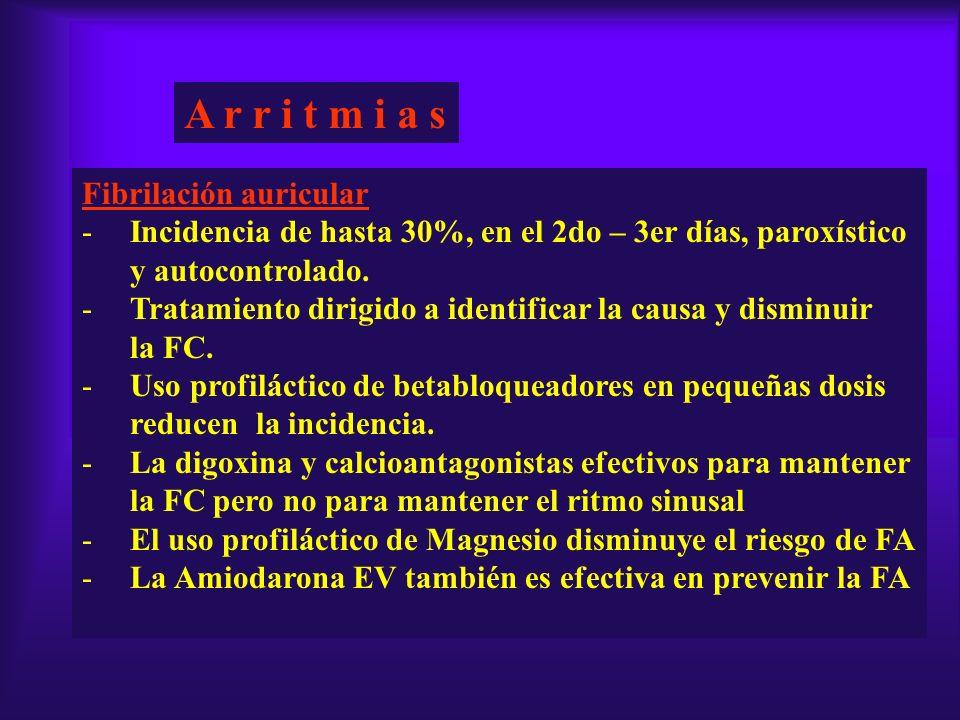 A r r i t m i a s Fibrilación auricular