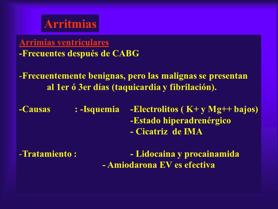 Arritmias Arrimias ventriculares -Frecuentes después de CABG