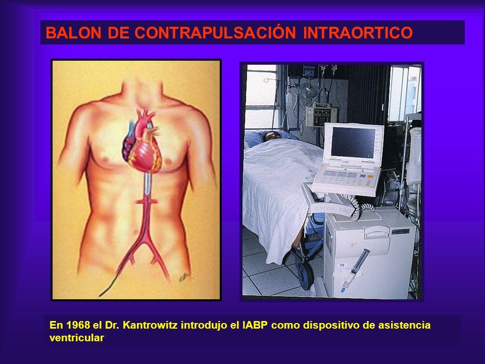 BALON DE CONTRAPULSACIÓN INTRAORTICO