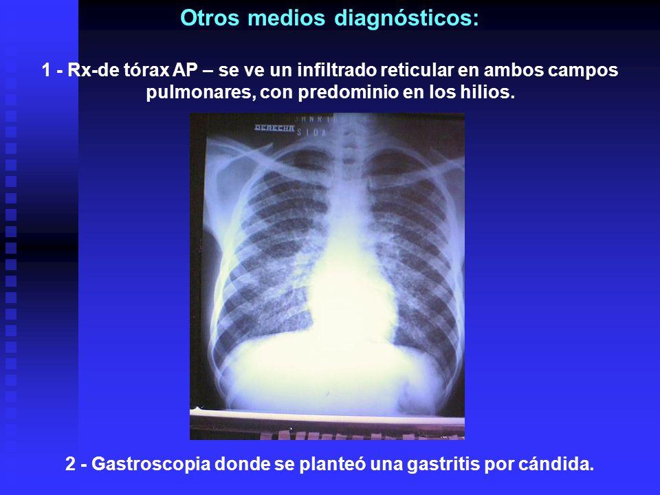 Otros medios diagnósticos: