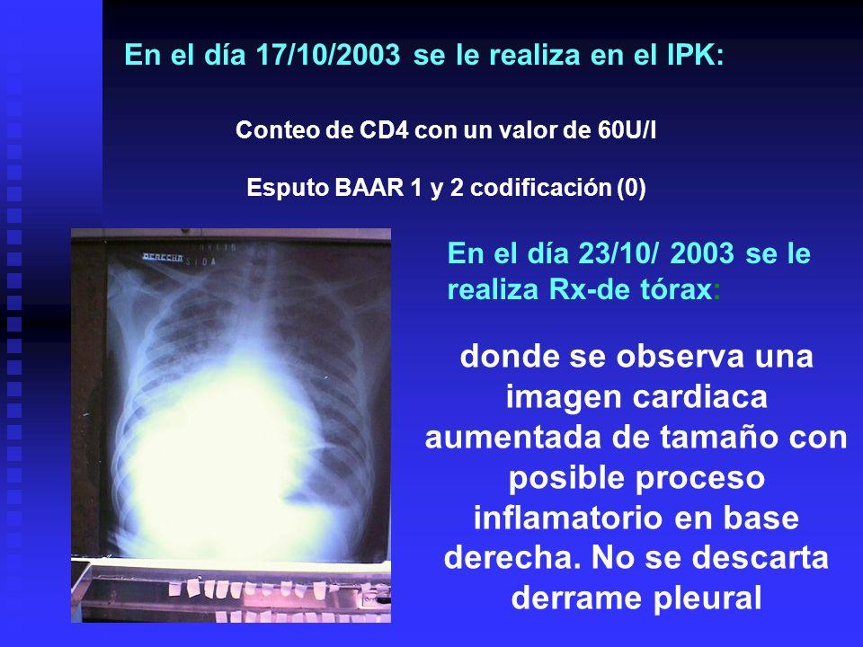 Conteo de CD4 con un valor de 60U/l Esputo BAAR 1 y 2 codificación (0)