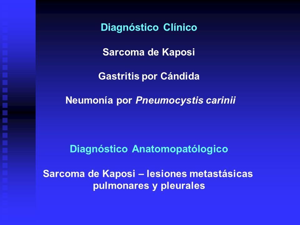 Diagnóstico Clínico Diagnóstico Anatomopatólogico