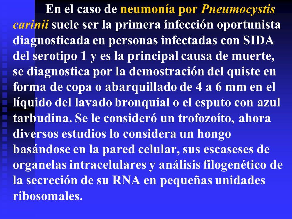 En el caso de neumonía por Pneumocystis carinii suele ser la primera infección oportunista diagnosticada en personas infectadas con SIDA del serotipo 1 y es la principal causa de muerte, se diagnostica por la demostración del quiste en forma de copa o abarquillado de 4 a 6 mm en el líquido del lavado bronquial o el esputo con azul tarbudina.