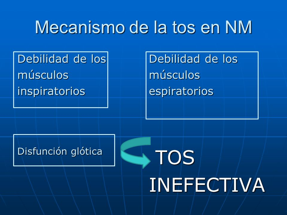 Mecanismo de la tos en NM