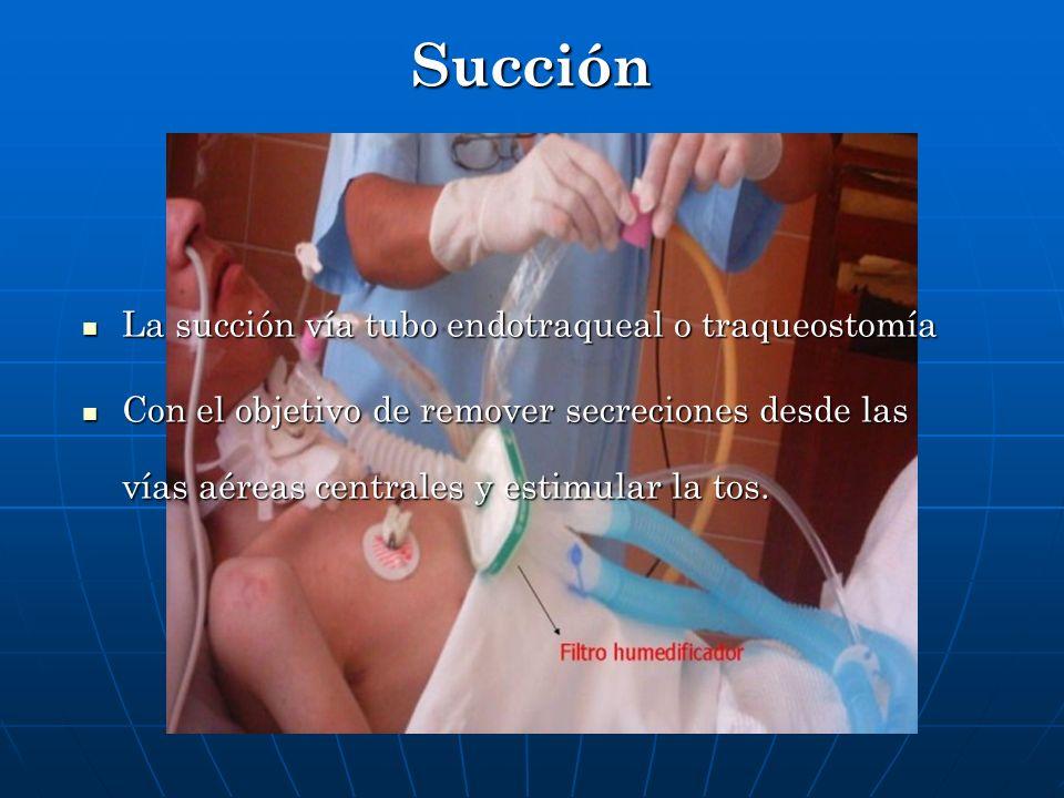 Succión La succión vía tubo endotraqueal o traqueostomía