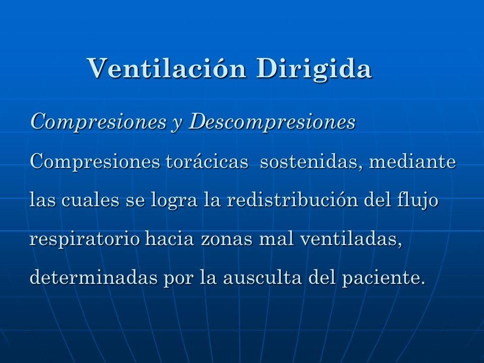 Ventilación Dirigida Compresiones y Descompresiones