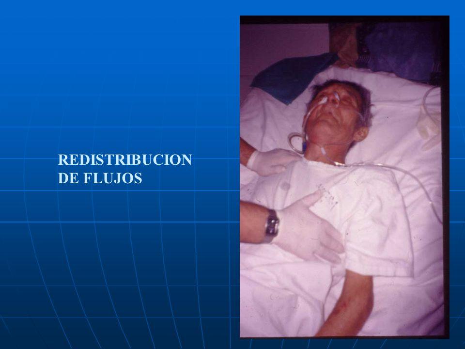 REDISTRIBUCION DE FLUJOS