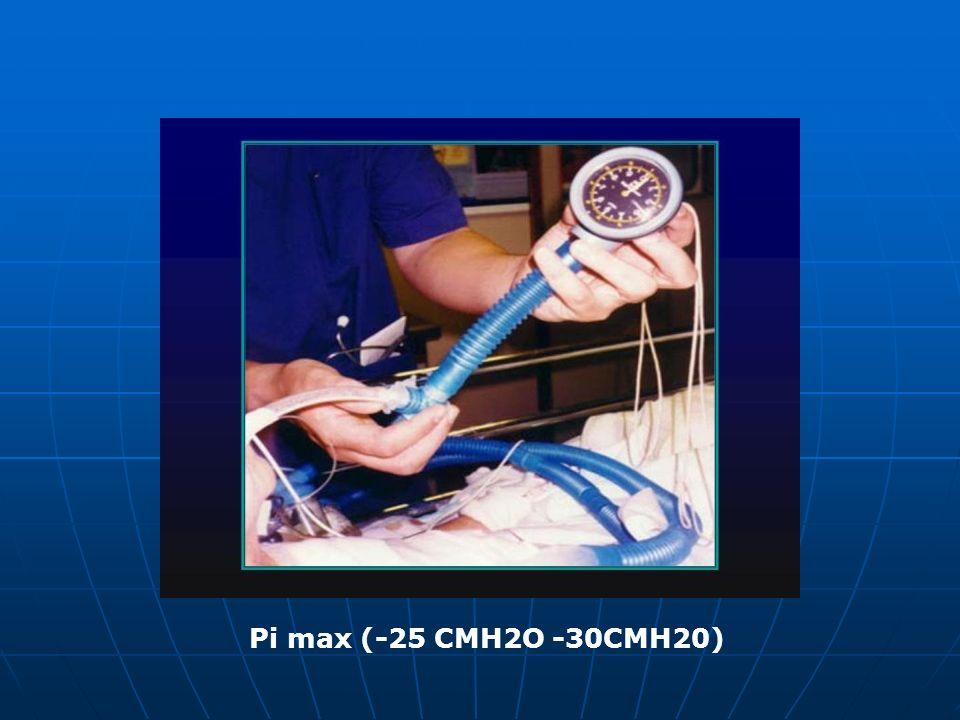 Pi max (-25 CMH2O -30CMH20)