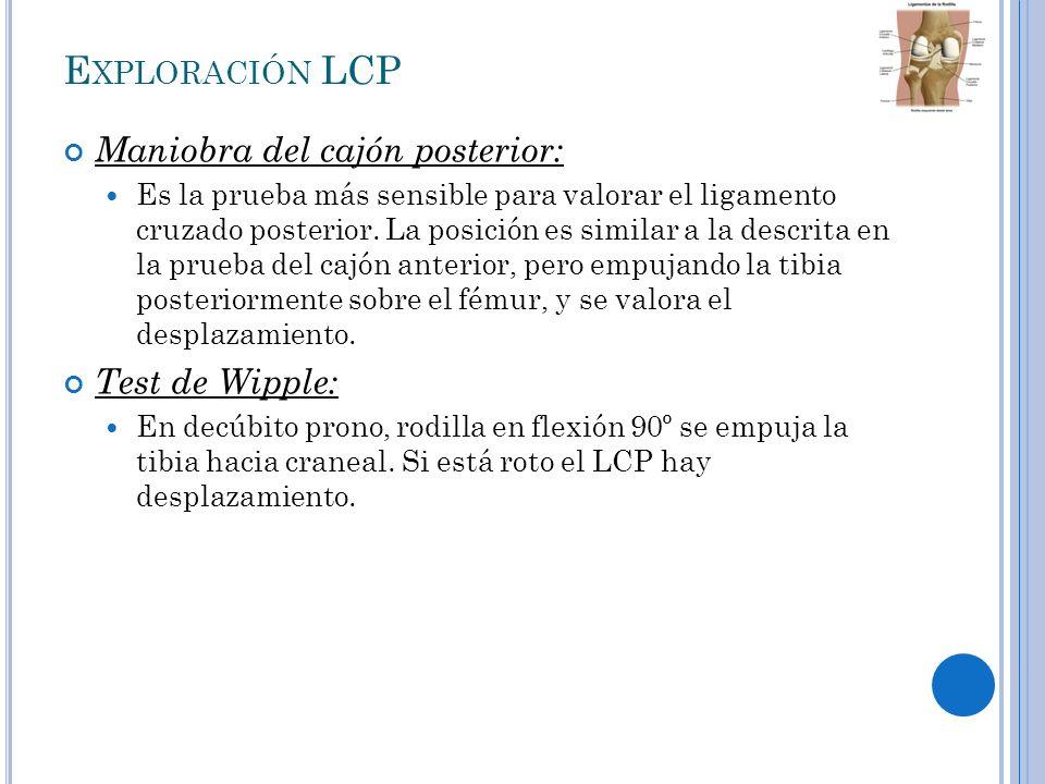 Exploración LCP Maniobra del cajón posterior: Test de Wipple: