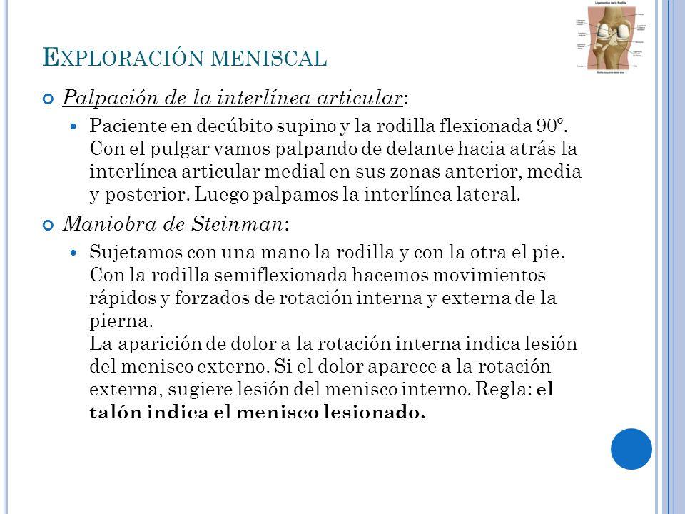 Exploración meniscal Palpación de la interlínea articular:
