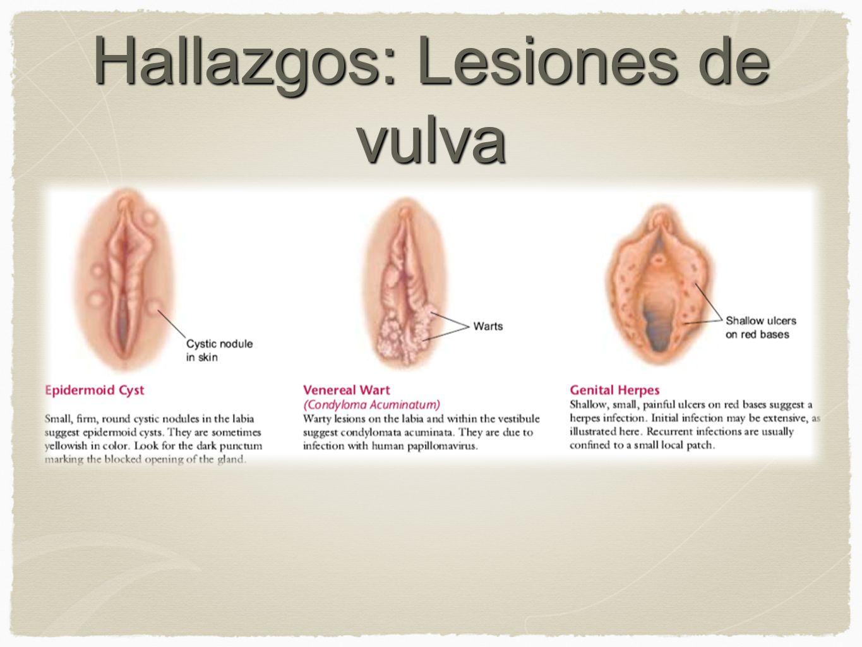 Hallazgos: Lesiones de vulva