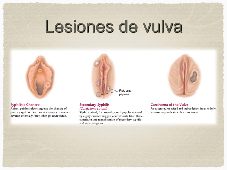 Lesiones de vulva