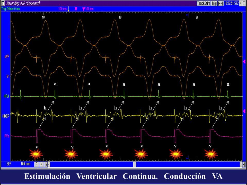 Estimulación Ventricular Continua. Conducción VA