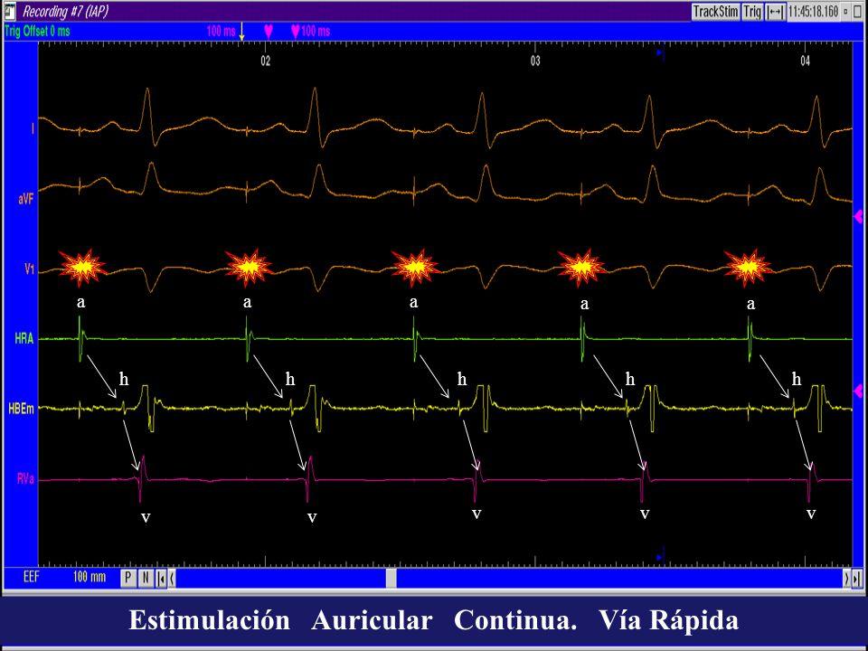 Estimulación Auricular Continua. Vía Rápida