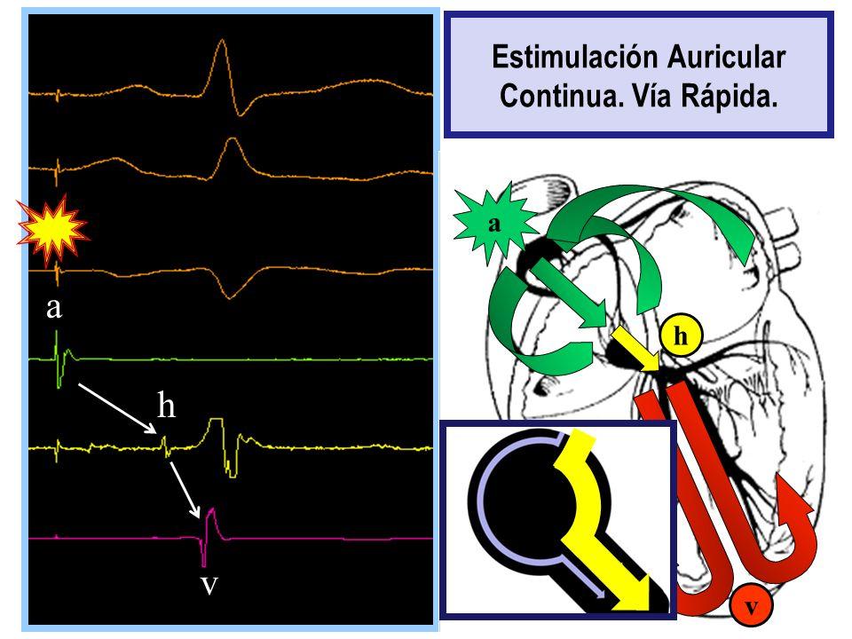 Estimulación Auricular