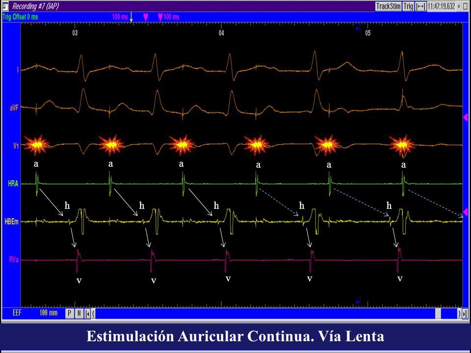Estimulación Auricular Continua. Vía Lenta