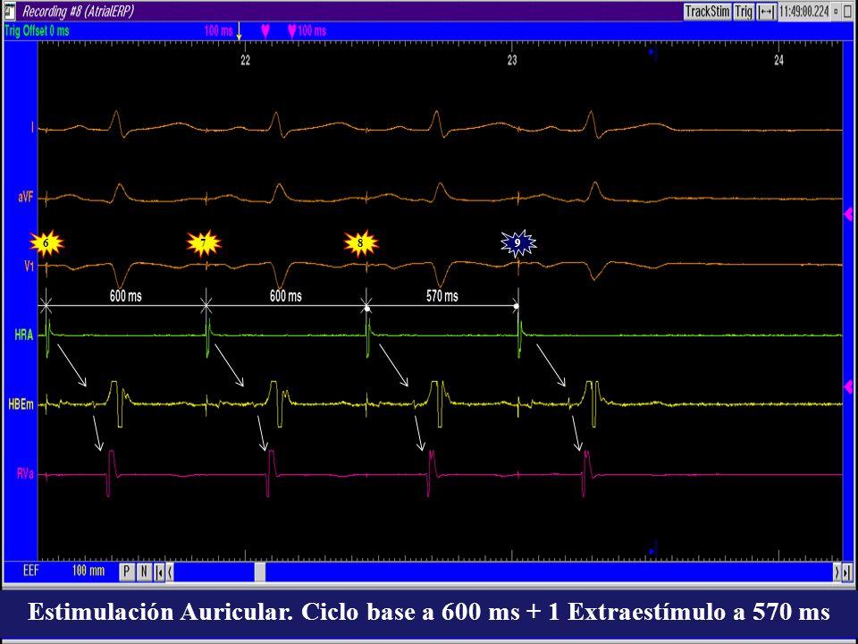 Estimulación Auricular. Ciclo base a 600 ms + 1 Extraestímulo a 570 ms