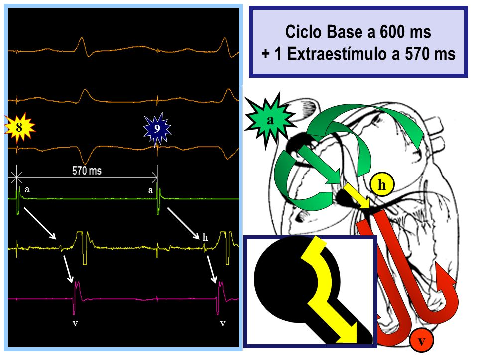 Ciclo Base a 600 ms + 1 Extraestímulo a 570 ms