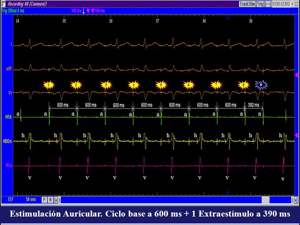 Estimulación Auricular. Ciclo base a 600 ms + 1 Extraestímulo a 390 ms