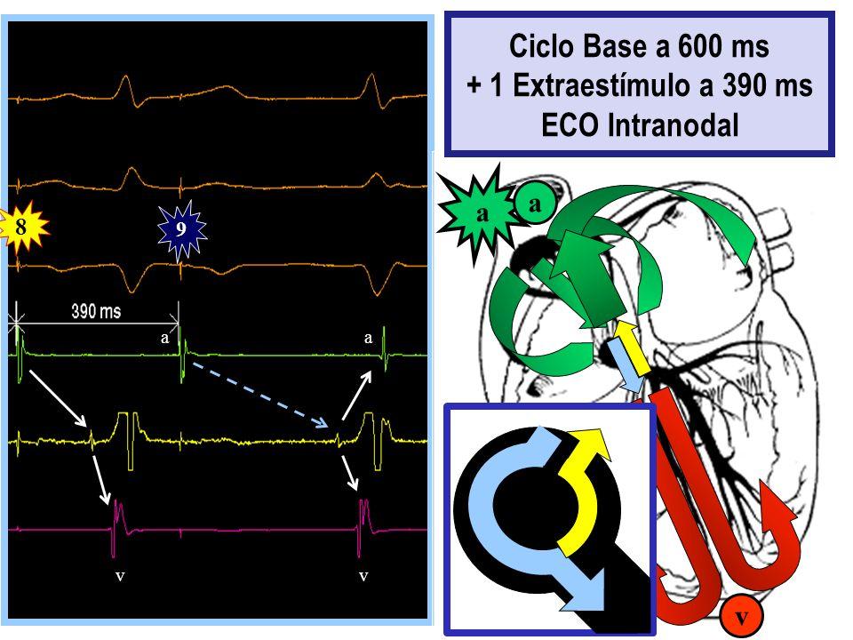 Ciclo Base a 600 ms + 1 Extraestímulo a 390 ms ECO Intranodal
